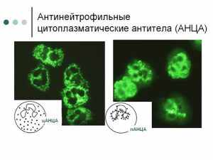 клетки АНЦА под микроскопом