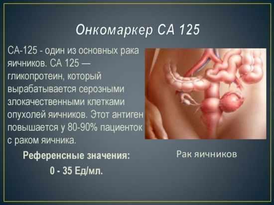 значение онкомаркера СА 125