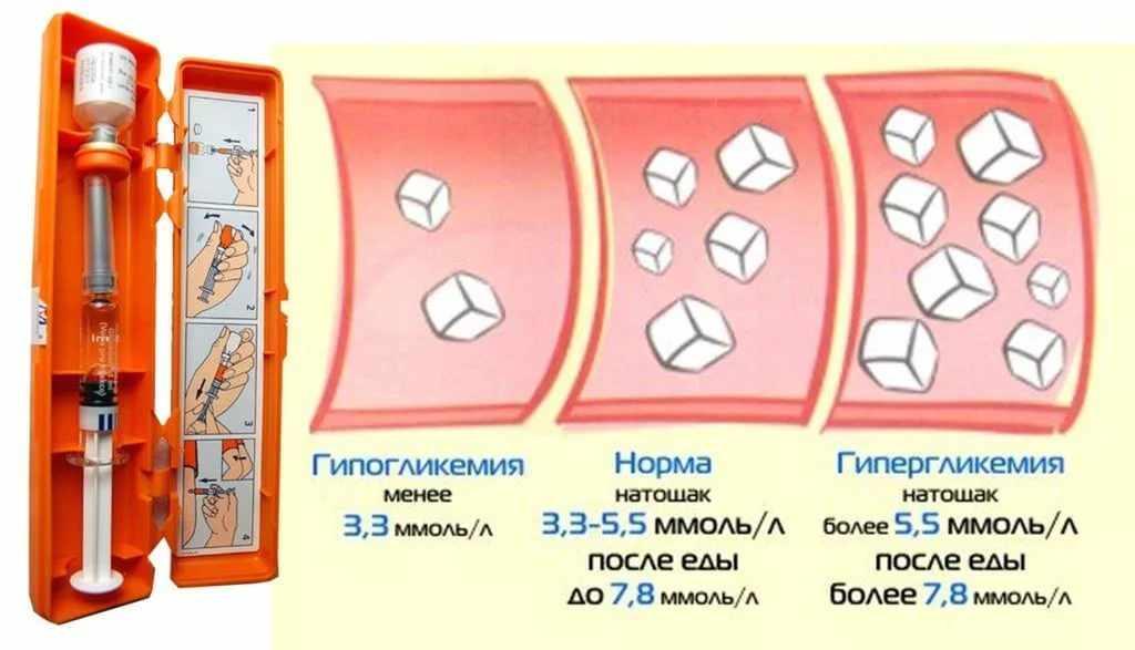 Гипо и гипергликемия